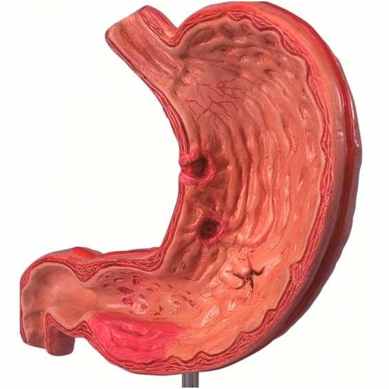Язва двенадцатиперстной кишки симптомы лечение и диета