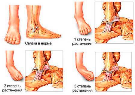 Вены на косточке ноги | wish-dom.ru