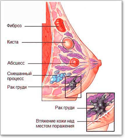 Добавлена 8 апреля 2013 в 22:36. маммопластика. Медафарм Портал. заболеван