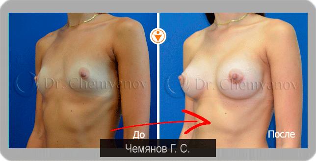 Упражнения для увеличения груди. (50 физических