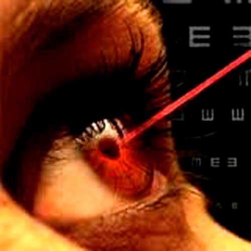 Операция на сетчатке глаза лазером