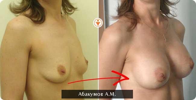Увеличение эндопротезирование груди с одномоментной подтяжкой