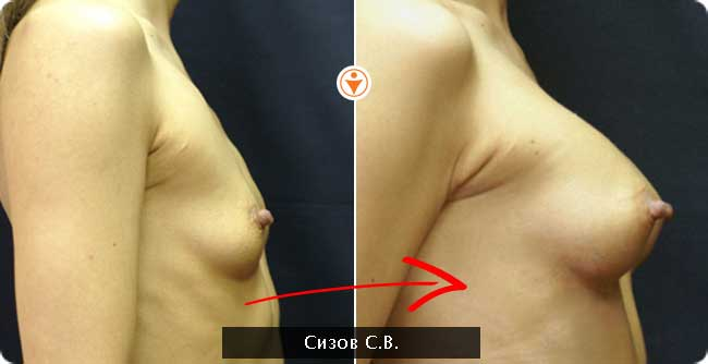 Гель или крем для подтяжки груди и против растяжек —